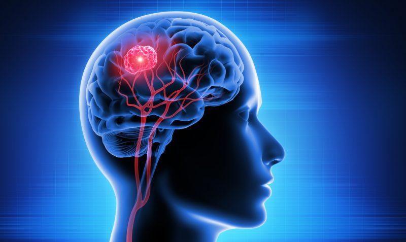 Oncology: brain tumor